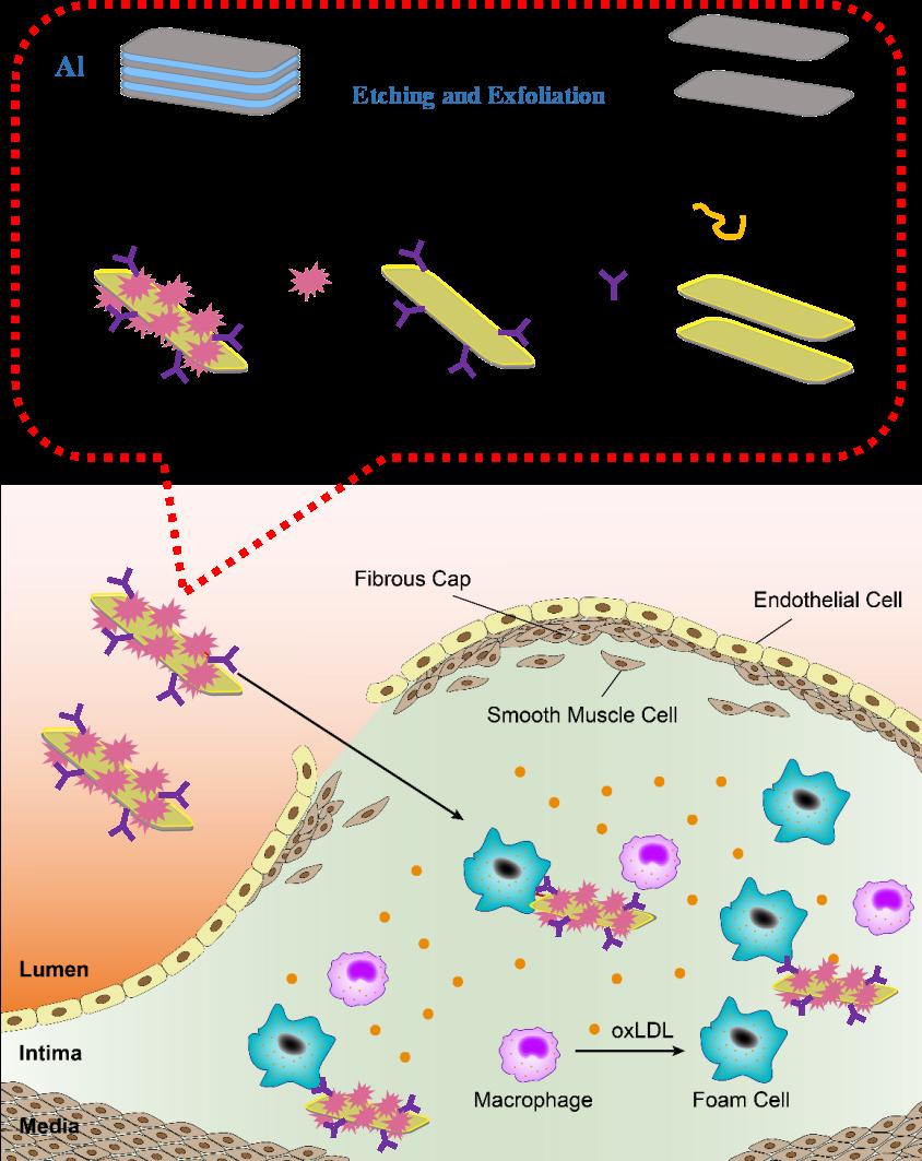 OPN Ab/Ti3C2/ICG纳米探针的合成以及对不稳定斑块的靶向识别